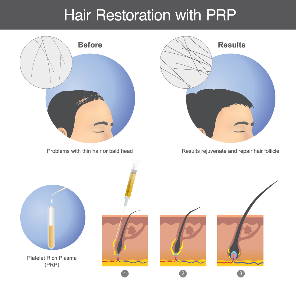 prp-for-hair-growth